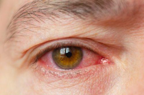 Augenentzündung Bindehautentzündung