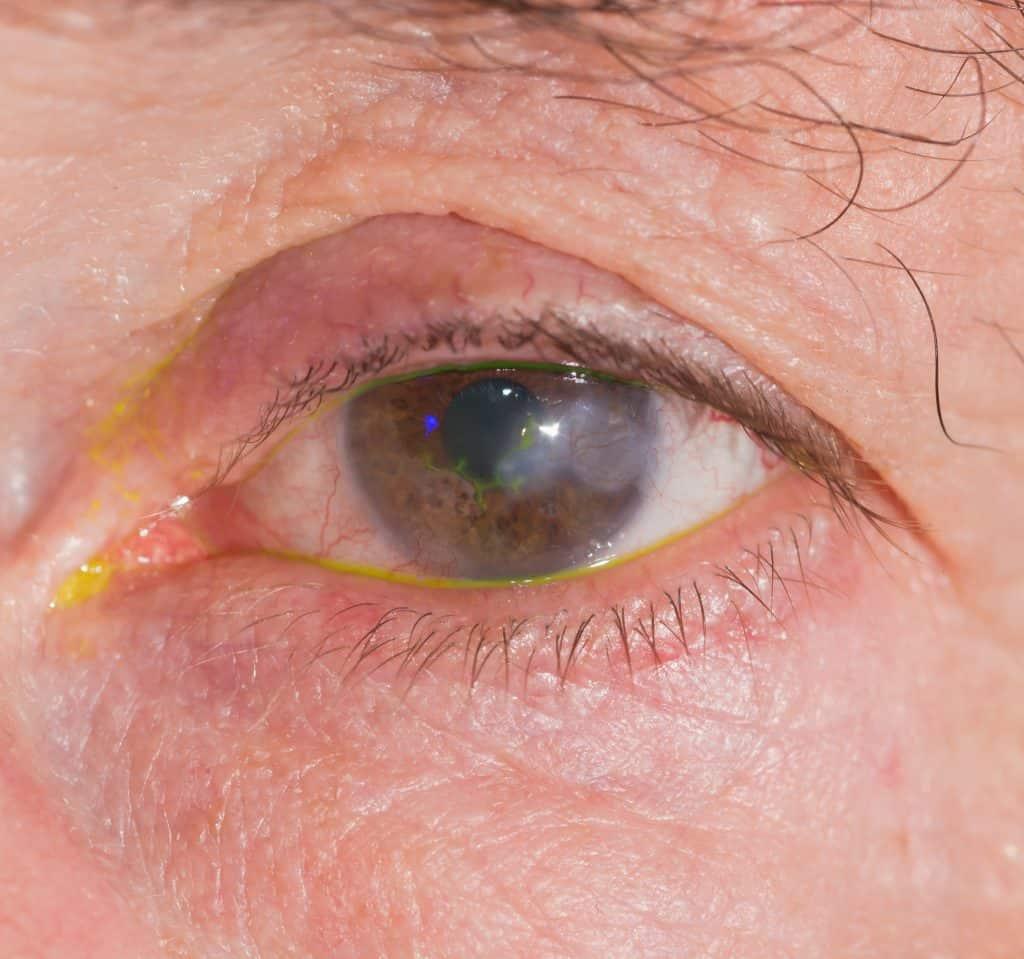 Herpes im Auge